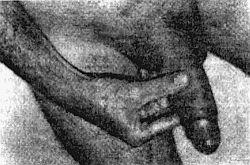 как увеличить толщину пениса Аткарск