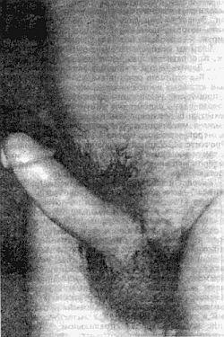 как увеличить мужской пенис Можга