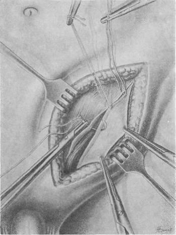 Плановая операция паховой грыжи